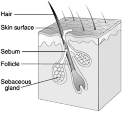Do you know everything you need to about Laser hair removal?